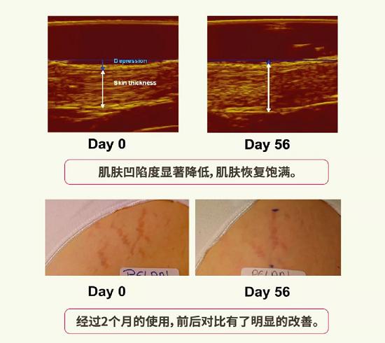 产后妊娠纹 交给韩国妊娠纹霜